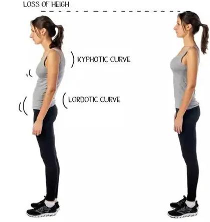 Unlock Your Spine Program